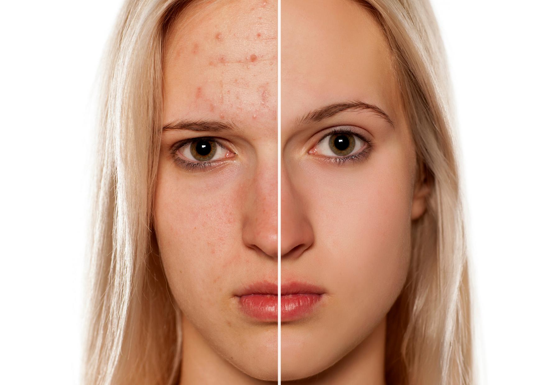 peau acnéïque