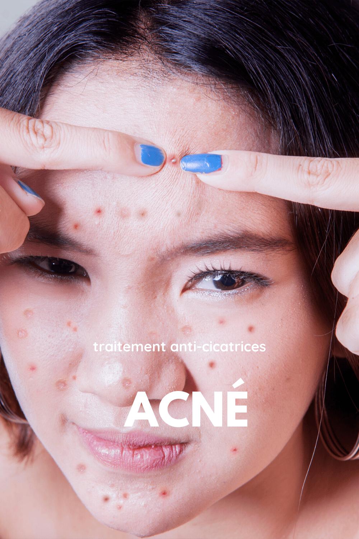 cicatrices d'acné